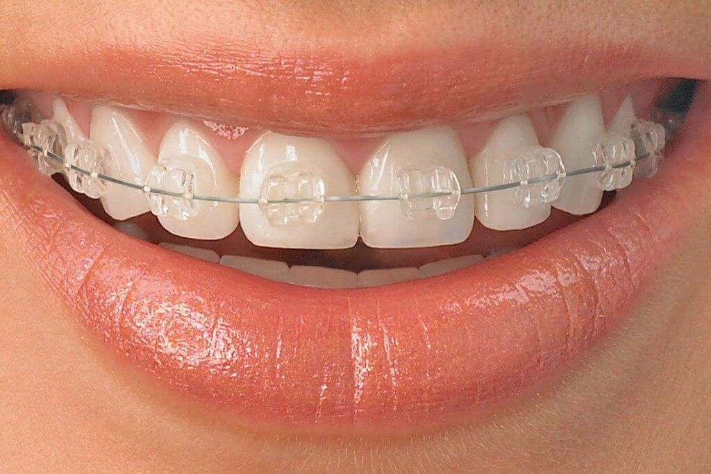 ortodoncia invisible antes y despues brackets transparentes