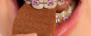 que comer con ortodoncia