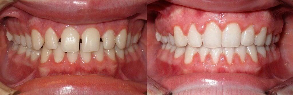 brackets antes y despues fotos