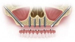 implantes dentales sin hueso precios