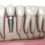 19939Kit Blanqueador Dental: Cuál es el Mejor Kit Casero, tipos y precios