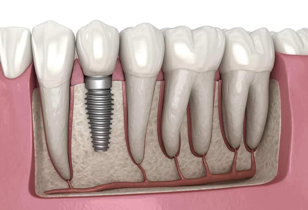 poner muela sin implantes dentales sin hueso