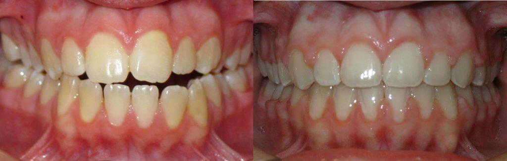 mordida abierta antes y despues brackets ortodoncia