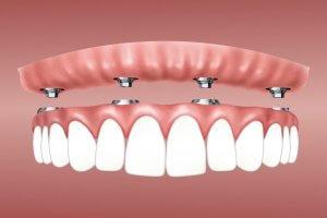 no tengo hueso para un implante dental
