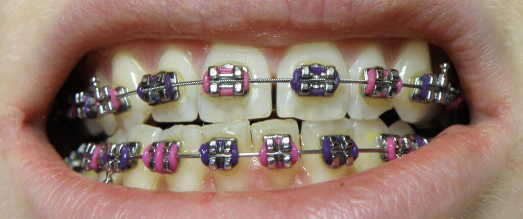 qué comer con brackets recetas blandas para ortodoncia