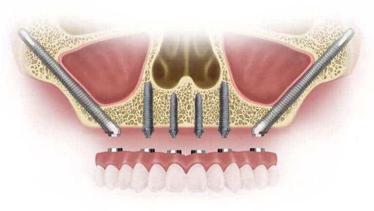 tipos de implantes dentales partes de un implante dental