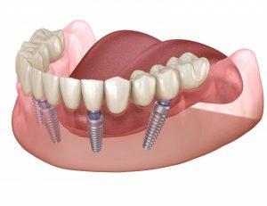 tipos de implantes dentales implantes de zirconio