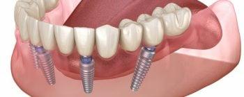 implantes dentales opiniones