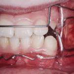 21074Ortodoncia Invisalign antes y después: casos difíciles tratados con Invisalign