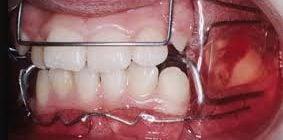 aparato de frankel ortodoncia