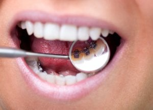 Braces on back of teeth