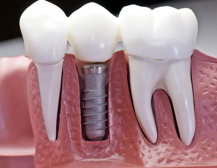 dental insurance that covers implants