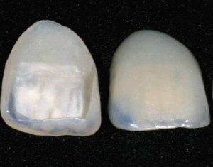 dental in Mexico