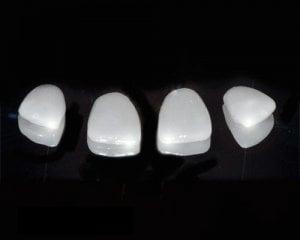 Porcelain teeth veneers lumineers