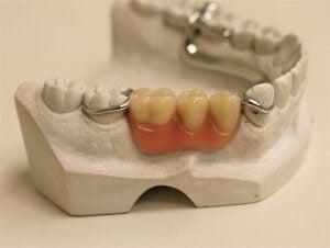 3 tooth denture