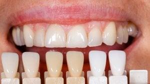 colour matching teeth vaneers