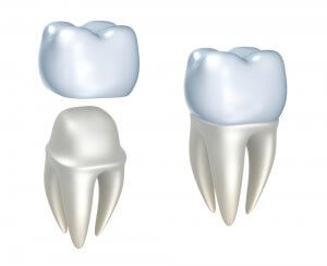 cheap tooth crown