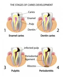 Tooth abscess stages