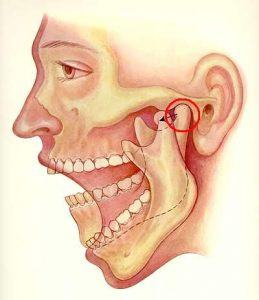 Damage to temporo-mandibular joint  caused by bruxism