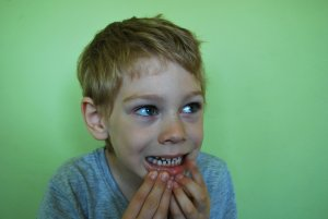 Children with bruxism