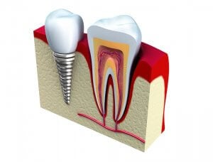 Cheaper teeth implants with dental payment plans