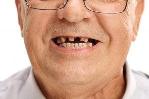 best dental implants in the world