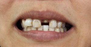 Cost of dental implants in Mexico