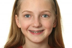 Dental care for children with braces