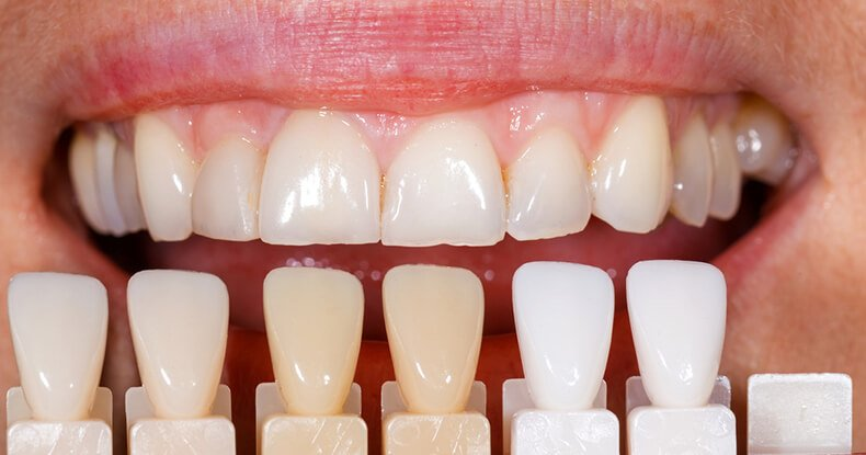 porcelain dental veneers