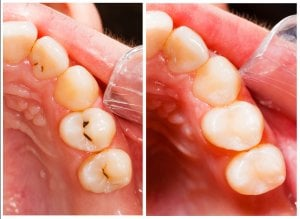 composite tooth filling photo