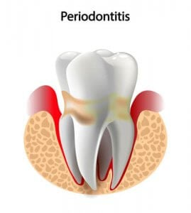 periodontitis inflamed gum around tooth