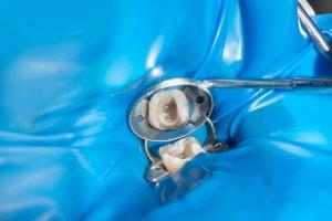 Safe mercury filling removal