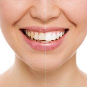 comment blanchir les dents professionnellement