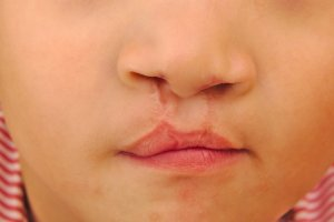 cleft lip after surgery