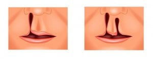 types of oral cleft