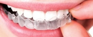 woman inserting invisible aligner