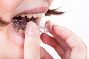 best retainer after braces