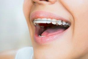 keep teeth straight