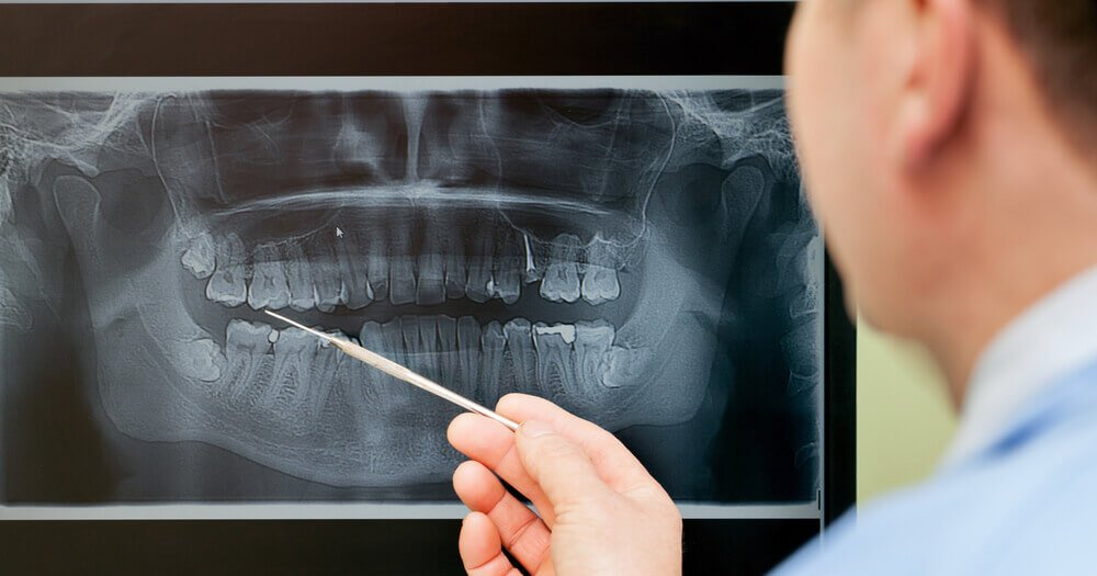 Cheap Insurance For Teens >> How to Get a Panoramic Dental X-Ray: Costs, Procedure and More
