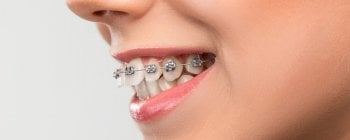 overbite teeth braces