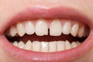 veneers for gaps in teeth fix