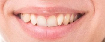 teeth straightening uk