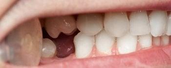 hypodontia premolar