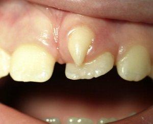 Extra teeth growing in gums