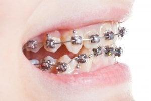 extra teeth growing in adults