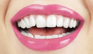 How much do veneers cost in Mexico?