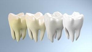 teeth yellowing