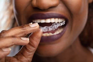 How much does Invisalign cost without insurance