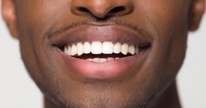 Implants can give the perfect smile