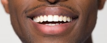 temporary teeth save your smile from gaps